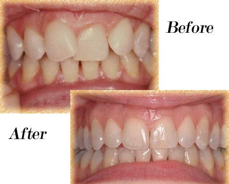 Invisalign - Dalton Dental Invisalign Before And After Severe Crowding